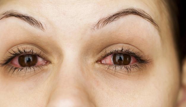 ojos rojos conjuntivitis