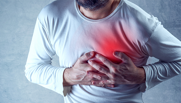 Infarto paro cardiaco