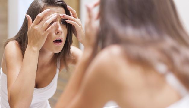 ¿Cómo controlo el acné? Acá la solución