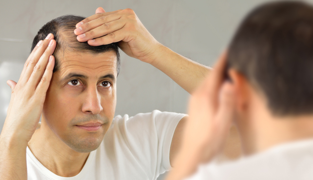 Sigue estos 5 consejos para evitar quedarte calvo