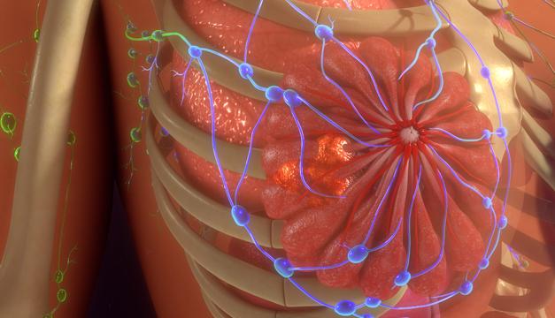 ¿Por qué el cáncer de seno se extiende a otras partes del cuerpo?