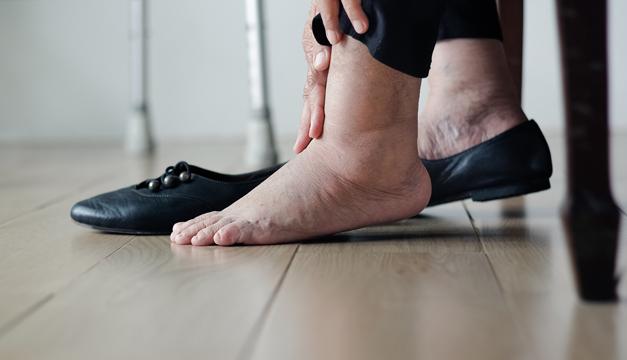 Las personas diabéticas deben cuidar sus pies de los hongos y esta es la razón
