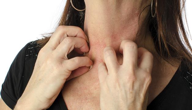 Tipos de alteraciones más frecuentes que afectan la piel