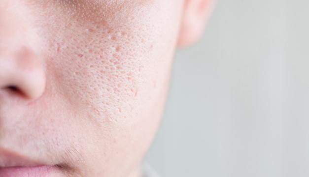 8 pasos para evitar la aparición de poros abiertos