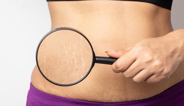 Conoce todo sobre cómo tratar las estrías de tu cuerpo