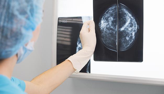 ¡Importante! Avances sobre los tratamientos para el cáncer de seno en El Salvador