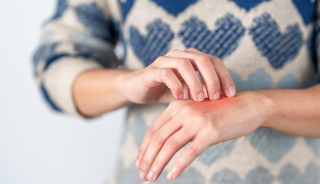 Dermatosis por exceso de videojuegos o dispositivos electrónicos