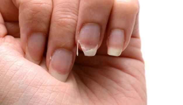 Guía fácil para fortalecer las uñas débiles y quebradizas