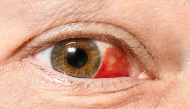¿Has tenido un derrame ocular? Aquí te contamos qué hacer